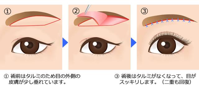 眉毛下タルミ切除