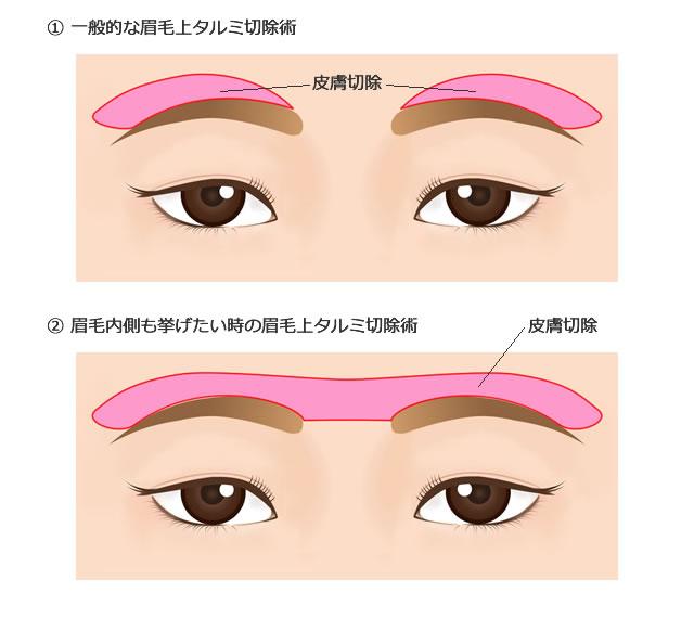 眉毛上タルミ切除術(眉毛挙上術)