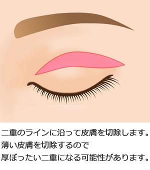 上眼瞼タルミ切除