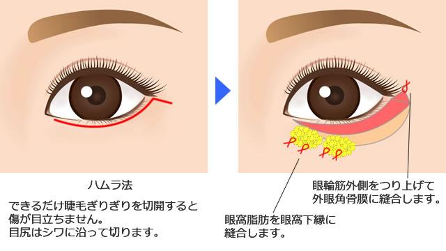 下眼瞼タルミ切除術(ハムラ法)