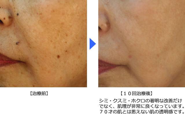 肌理・毛穴の改善例1