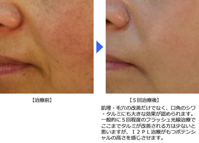 肌理・毛穴の改善例2