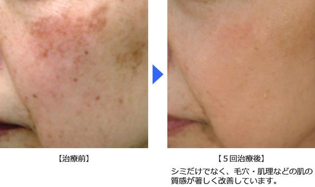 肌理・毛穴の改善例3