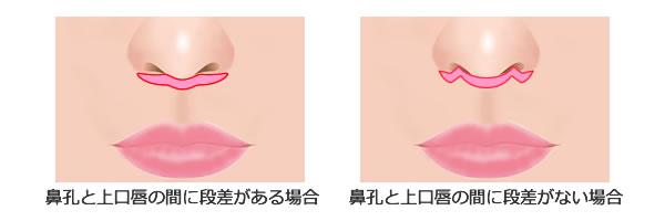 上口唇短縮術(鼻下切除術)