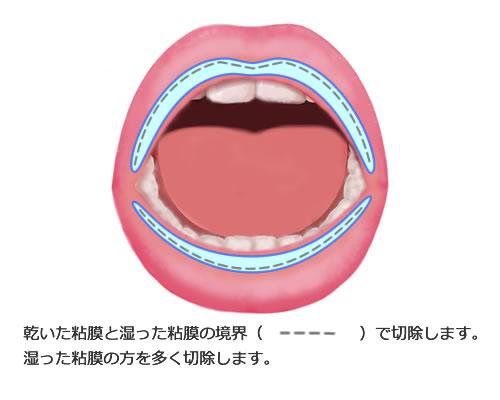 口唇縮小術(唇を薄くする手術)