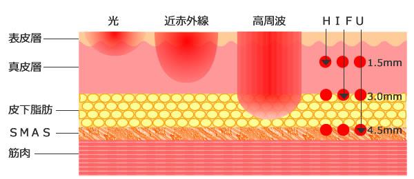 熱深達度のイメージ図