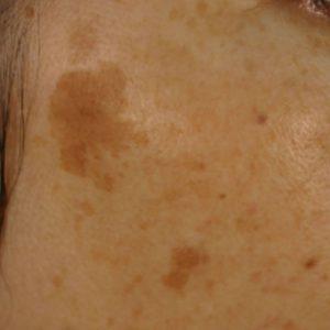 老人性色素斑の症例2
