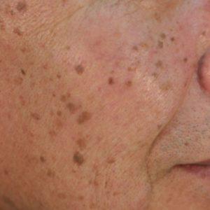 脂漏性角化症(老人性イボ)の症例