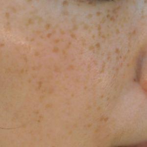 そばかす(雀卵斑)の症例