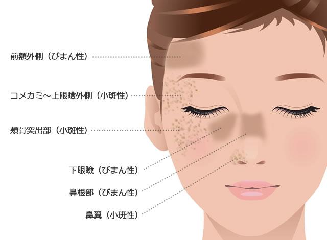 ADM発症部位の図