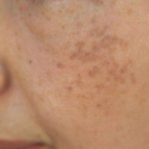 ADM(後天性真皮メラノサイトーシス)の症例1