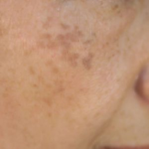 ADM(後天性真皮メラノサイトーシス)の症例2
