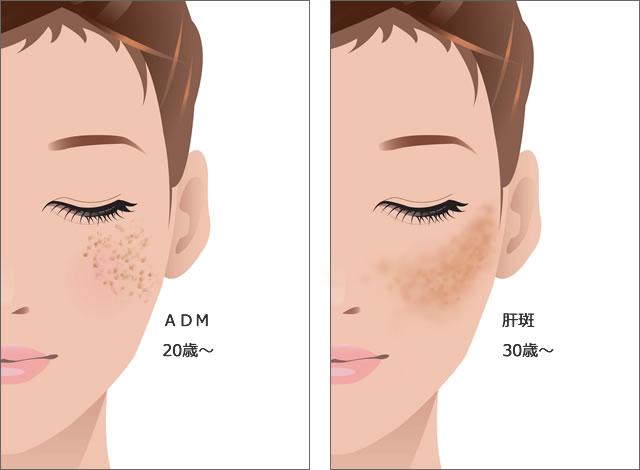 ADMと肝斑の鑑別の図